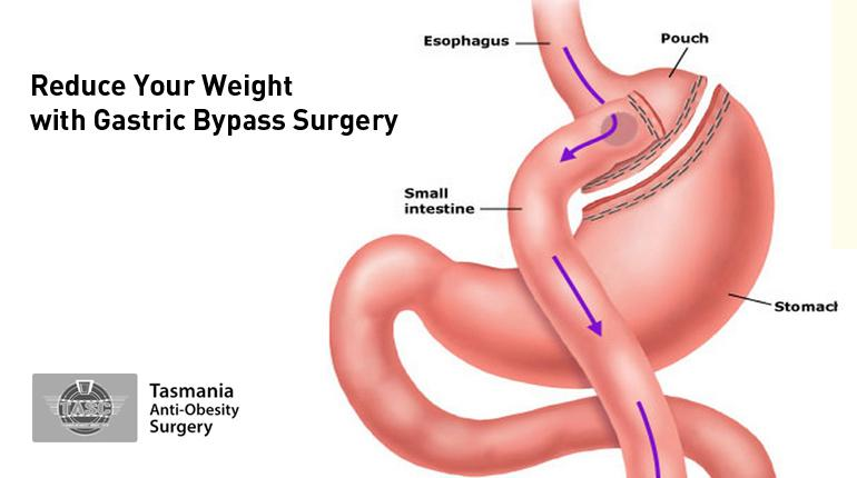 Tasmania Anti-Obesity Surgery - Reduce Your Weight with Gastric Bypass Surgery