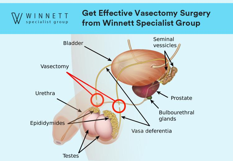Get Effective Vasectomy Surgery from Winnett Specialist Group