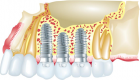 Dental Implants: Types and Procedure